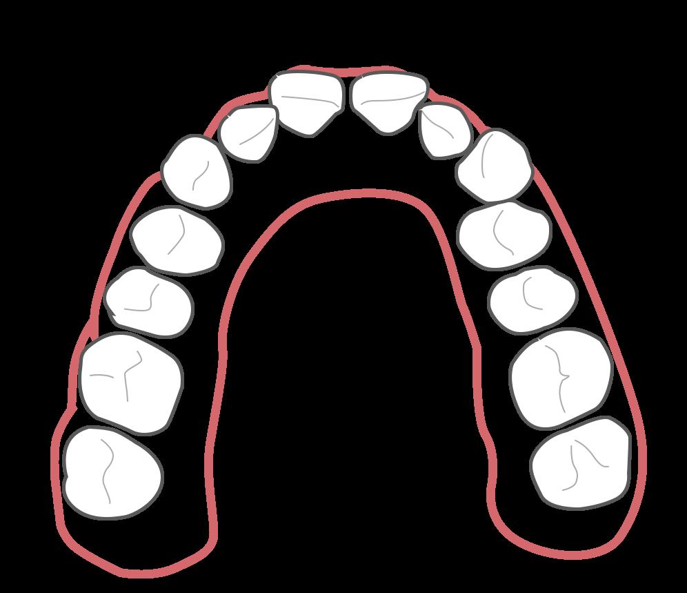 Aligner Behandlung - Schritt 1 (vor der Behandlung)