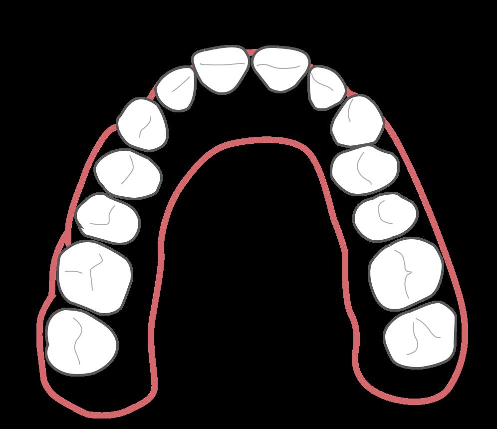 Aligner Behandlung - Schritt 3