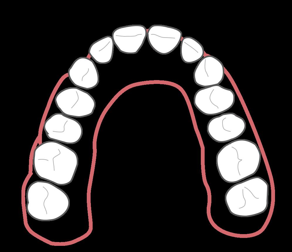 Aligner Behandlung - Schritt 4 (Nach der Behandlung)